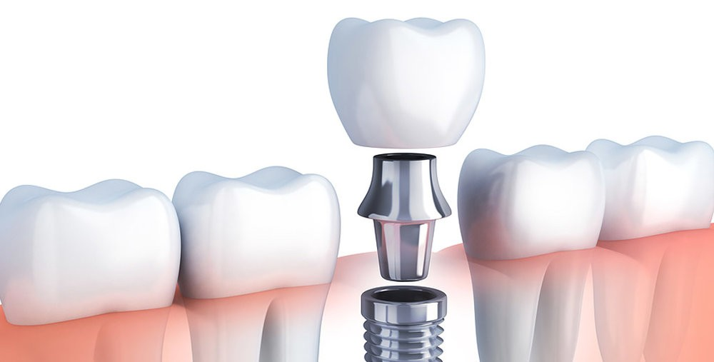 Dental+Implants