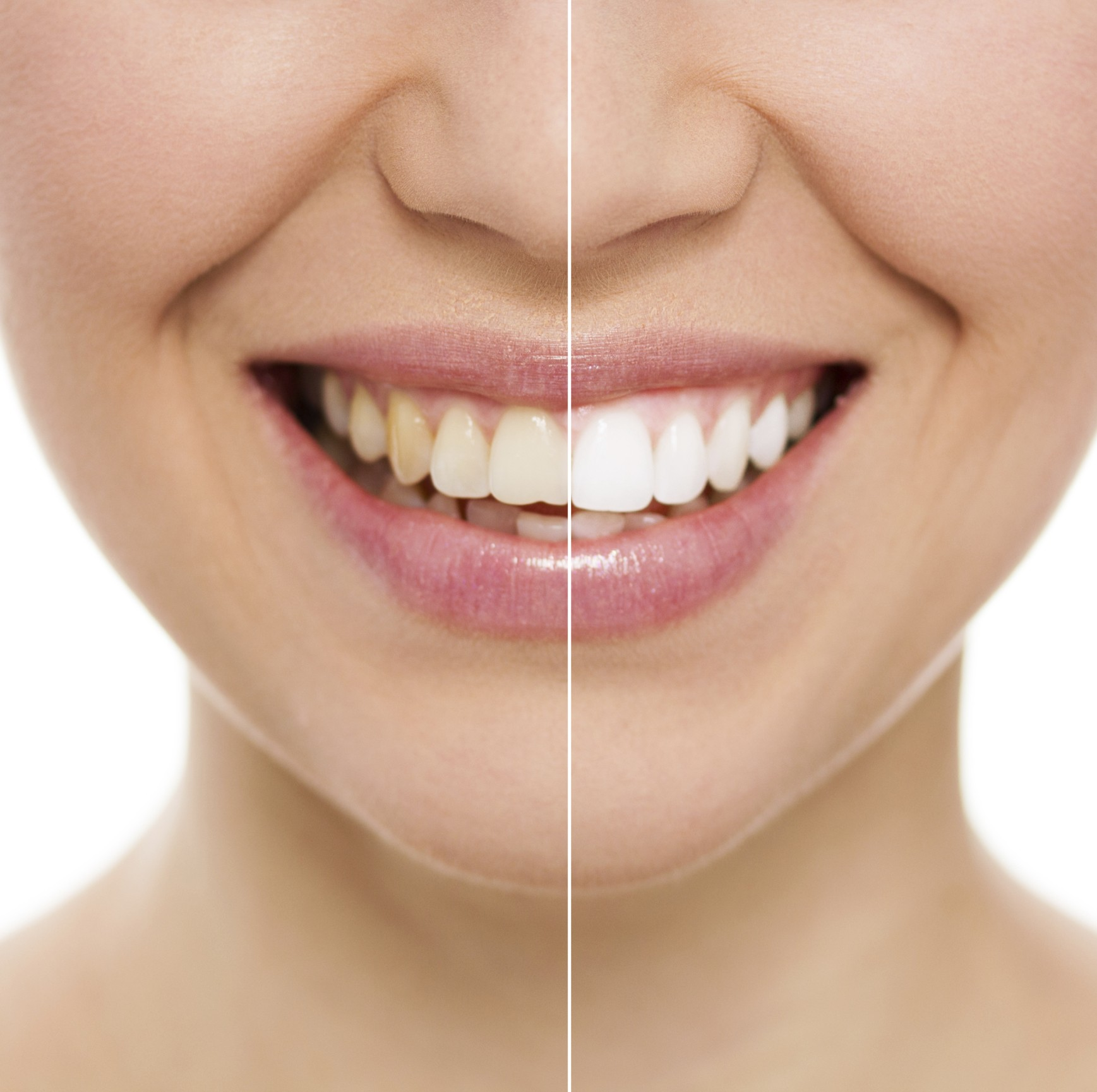 Affordable Cosmetic Dentistry In Dominion Road Mount Roskill, Mount Albert, Sandringham, Avondale, Three Kings, Auckland