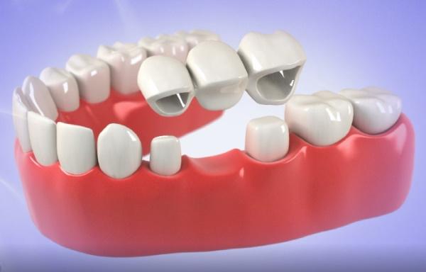 Dental Bridges Auckland